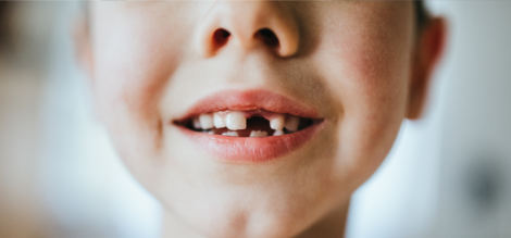 Common Causes of Tooth Loss
