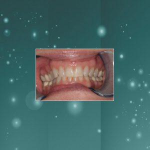 Dental Veneers (#3) BEFORE