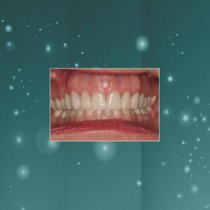 Dental Veneers (#3) AFTER
