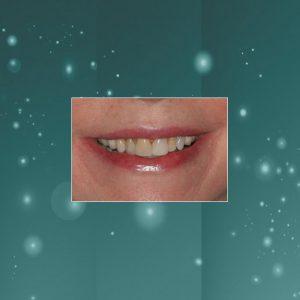 Dental Veneers (#1) BEFORE