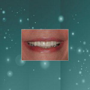 Dental Veneers (#1) AFTER