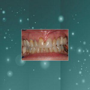 Dental Veneers (#2) BEFORE