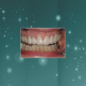 Dental Veneers (#2) AFTER