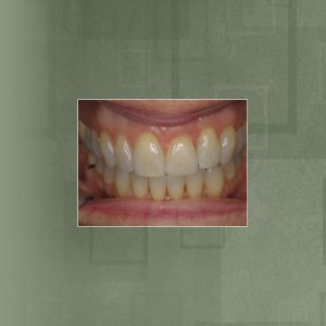 Invisalign (#1) AFTER