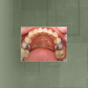 Invisalign (#2) AFTER