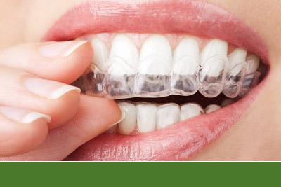 Invisalign Teeth Straighteners