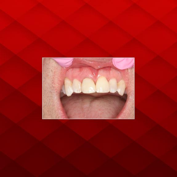 implant-1c