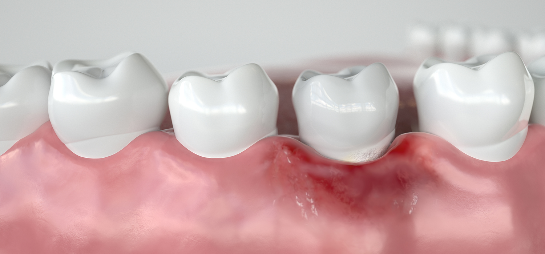 Treating Gingivitis and Periodontal Disease